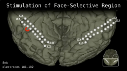 Stimulation of Face-Selective Region